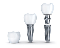 A dental implant consists of a post, abutment, and restoration to replace a missing tooth.