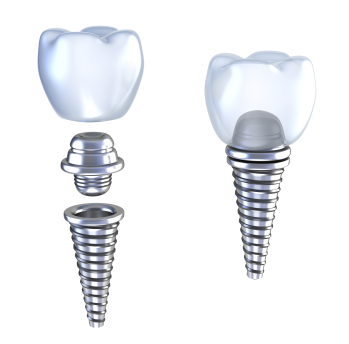 Diagram of dental Implants by dentist in Garden City, NY.