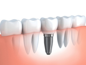 Reasons Why Your Body May Not Accept a Dental Implant