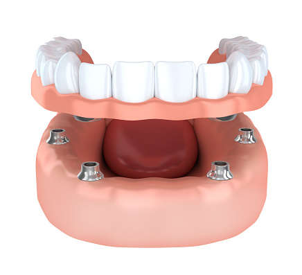 An implant-retained denture is an alternative solution to the All on 4® Treatment Concept.