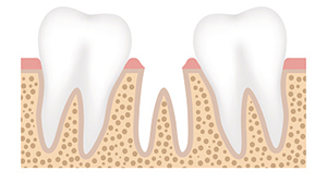 When you are missing teeth, your other teeth will begin to 'collapse' in around the missing areas and your jawbone will begin to lose bone mass- but dental implants can stop this from happening.