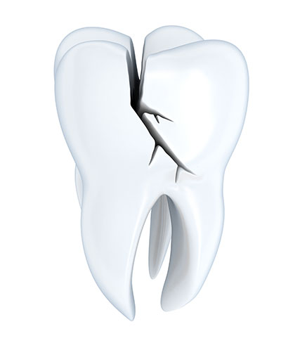 Symptoms of a Fractured Molar