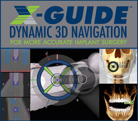 XGuide Navigation images from Progressive Oral Surgery & Implantology of Long Island