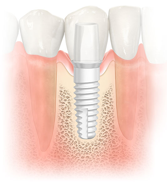 A Zirconia Dental Implant at Progressive Oral Surgery & Implantology of Long Island